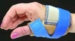 Thumb_splint